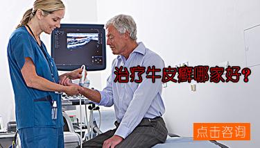 局限性脓疱型银屑病的临床症状表现