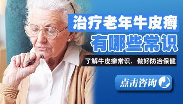 老年银屑病的症状